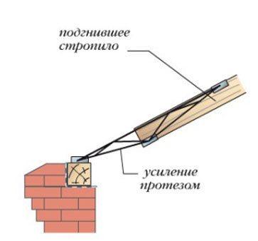 Схема монтажа протеза